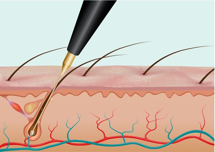 Das Einführen der Sonde in ein Haarfollikel